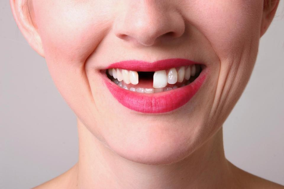 Middle-aged tooth loss linked to increased coronary heart disease risk
