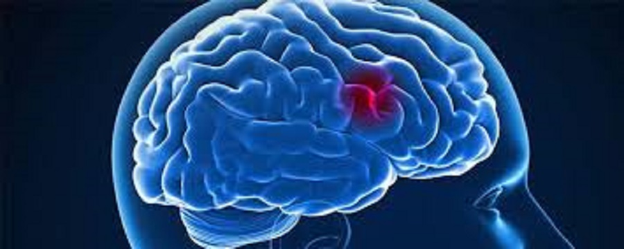 Stem Cell Stimulation may Improve Stroke Treatment